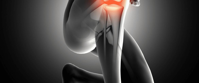 4 Ways To Prevent Knee Pain