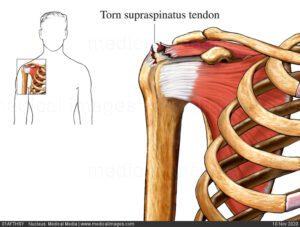Supraspinatus Muscle Injury